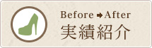 Before→After 実績例